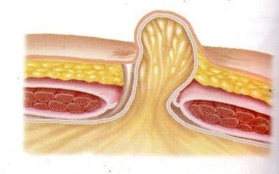 ομφαλοκήλη